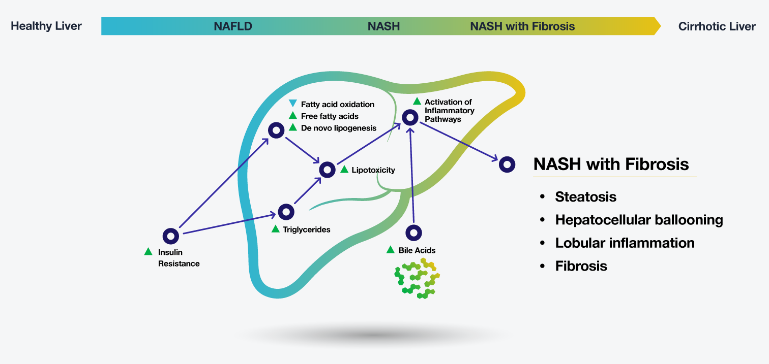 NASH Progression